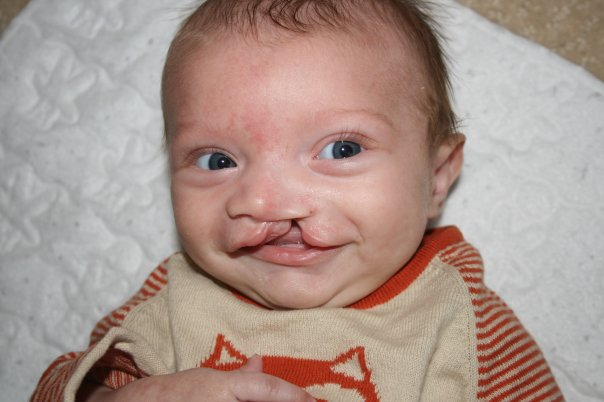 connor before surgery 2